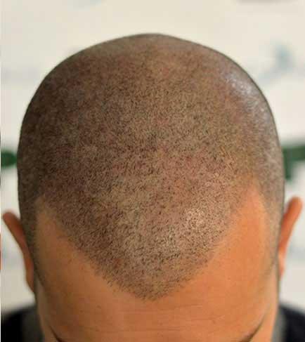 tricopigmentation-après
