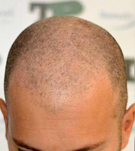 tricopigmentation-avant
